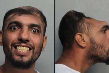 Half-Headed Man Arrested In Miami For Arson And Attempted Murder